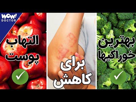 بهترین خوراکی ها برای کاهش التهاب پوست پیست ؟ اگزمای پوستی و رژیم غذایی مناسب برای درمان آن